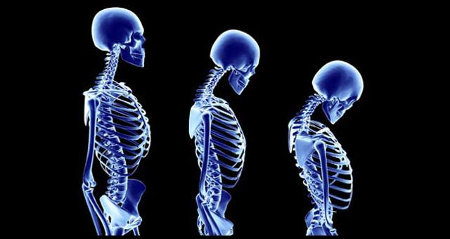 Posture Skeleton